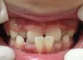 宝宝这样的牙齿你还怕吗?