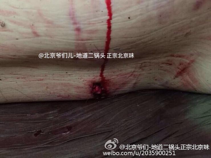 八达岭野生动物园老虎伤人事件后续,被咬女子全身多处